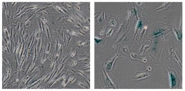 Salk Institute researchers discovered that a protein mutated in the premature aging disorder, Werner syndrome, plays a key role in stabilizing heterochromatin, a tightly packaged form of DNA. More generally, the findings suggest that heterochromatin disorganization may be a key driver of aging. This image shows normal human cells (left) and genetically modified cells developed by the Salk scientists to model Werner syndrome (right), which showed signs of aging, including their large size. (Credit: Salk Institute for Biological Studies)
