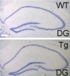 Increased length of the hippocampus dentate girus (DG) for TLX gene overexpressed (Tg or transgenic mice) vs control group (WT, or wild type) (credit: Kiyohito Mura et al./PNAS)