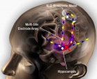 "Hippocampal prosthesis restores memory functions by creating ""MIMO"" model-based electrical stimulation of the hippocampus --- bypassing a damaged brain region (red X). (credit: USC)"