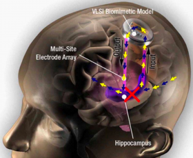 """Hippocampal prosthesis restores memory functions by creating """"MIMO"""" model-based electrical stimulation of the hippocampus --- bypassing a damaged brain region (red X). (credit: USC)"""
