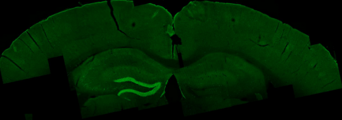 External electrical waves excite an area in the mouse hippocampus, shown in bright green. (credit: Nir Grossman, Ph.D., Suhasa B. Kodandaramaiah, Ph.D., and Andrii Rudenko, Ph.D.)