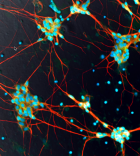 human induced pluripotent stem cell neurons ft