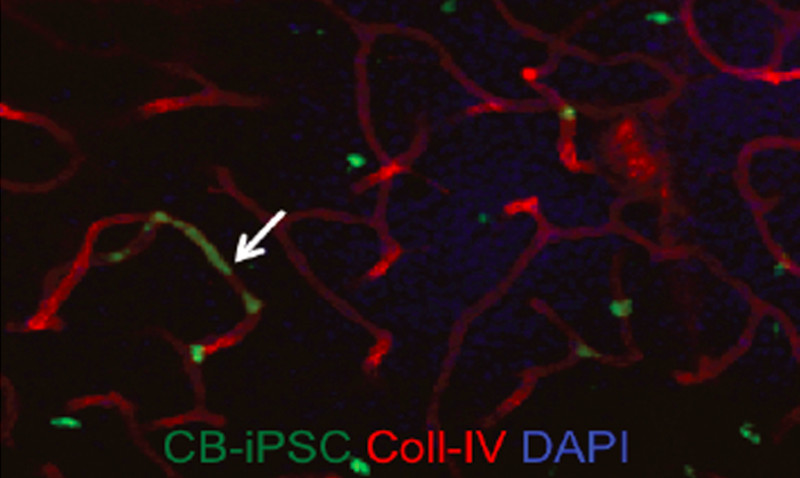 iPSC-derived_vascular_stem_cells