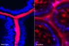 Snapshot images show intestines of wild-type and knockout mice injected with dextran (red) and imaged using intravital two-photon microscopy from the intestine lumen. DAPI (blue) illustrates stained cells within the intestinal epithelium. Dye tracking (red) between DAPI (blue) labelled cells indicates a 'leaky' intestinal epithelium. (Credit: Kamal Khanna, Ph.D., University of Connecticut, Farmington)