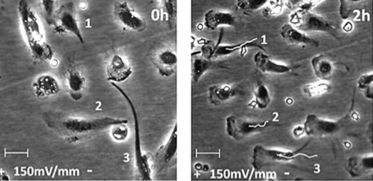 Time-lapse photo of human macrophages migrating directionally toward an anode . Left: no electric field. Right: Two hours after 150 mV/mm electric field applied (white lines shows the movement path toward candida yeast; numbers indicate start and end positions of cells). (credit: Joseph I. Hoare et al./JLB)