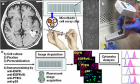 Conceptual summary of the microfluidic image cytometry technology: (a) Dissociated glioblastoma cells obtained from a patient are introduced into a microfluidic cell array chip for multi-parameter analysis by this technology. (b) A semi-automated pipette executes cell seeding/culture and ICC. (c) The ICC-treated samples in the chips are mounted on a fluorescent microscope for image acquisition followed by analysis using an image cytometry program (i.e., Metamorph, Molecular Devices Inc.) to quantify the expression levels of signaling proteins with single-cell resolution.