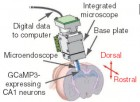 A tiny microscope<br /> equipped with a microendoscope images cells expressing GCaMP3 (credit: Yaniv Ziv et al./Nature Neuroscience)