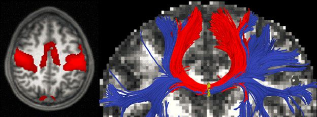 mit_mapping_neurological_disease
