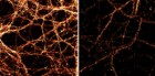 Images of mouse neurons from the hippocampal region of the brain. Levels of the surface receptor GluR1, orange, are shown in unmodified neurons, left, and in those with increased levels of Tet3, right (credit: Huimei Yu, Johns Hopkins Medicine)