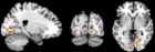 Perceptual regions of the brain activated more among autistics than non-autistics during a non-verbal intelligence test
