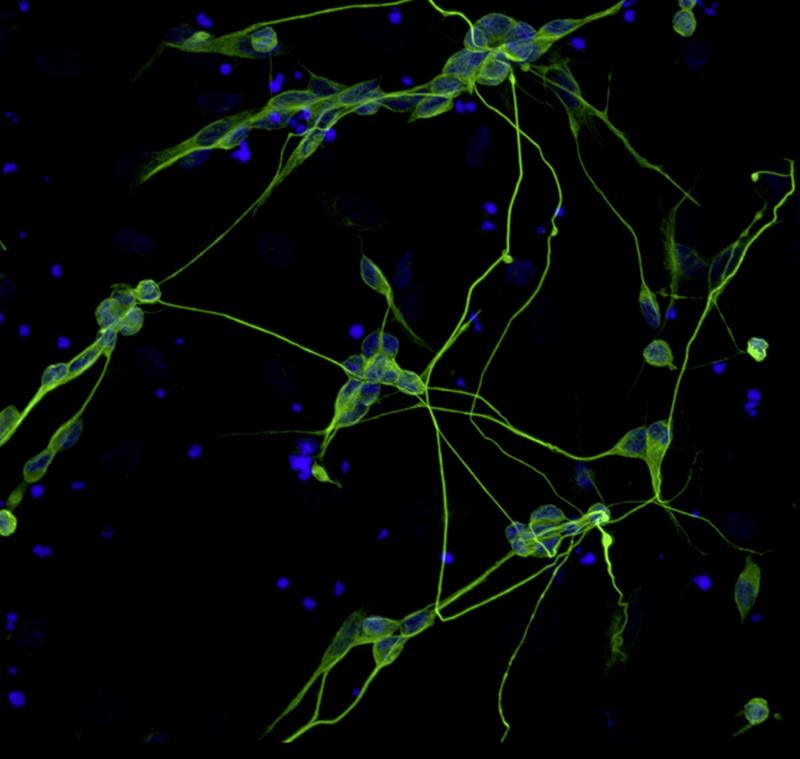nerve_cells_from_skin_cells