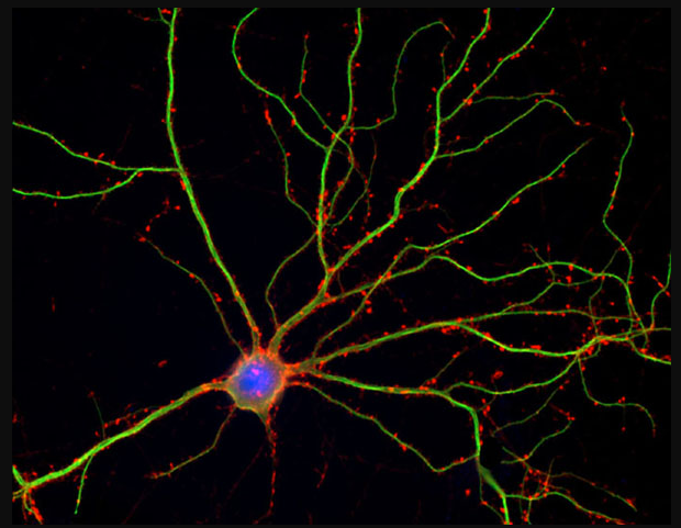 Neuron (blue) with dendrites (credit: Shelley Halpain/UC San Diego)