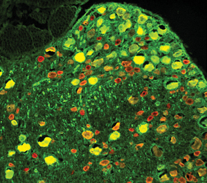 neurons_repaired_by_gene_therapy