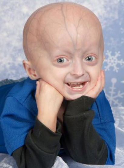 Year-old boy with hutchinson-gilford progeria syndrome. (the