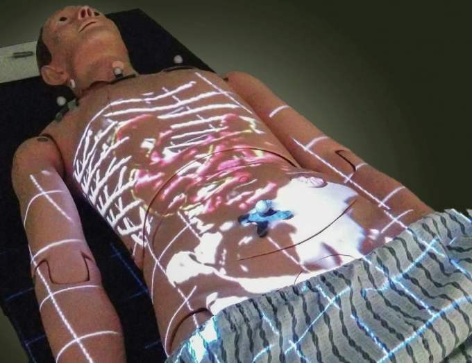Projected medical image (credit: University of Alberta)