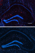 Reduction of beta-Amyloid plaque in hippocampus of mice treated with in 14 days