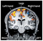 These areas of the motor cortex are activated when thinking about moving things (credit: New Scientist)