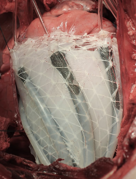 A soft robotic sleeve placed around the heart in a pig model of acute heart failure. The actuators embedded in the sleeve support heart function by mimicking the outer heart muscles that induce the heart to beat. (credit: Harvard SEAS)