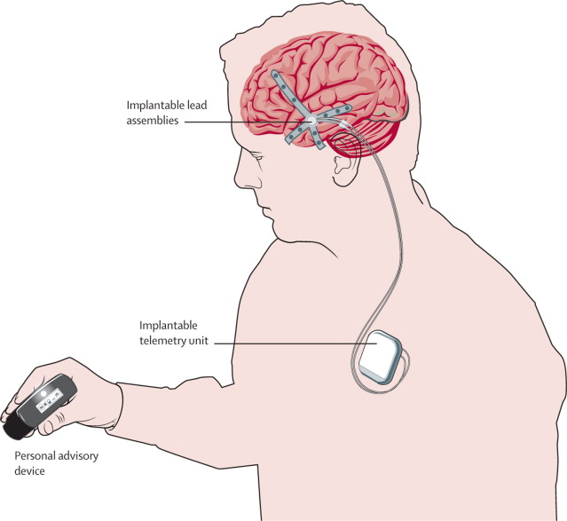 Brain implant gives early warn...