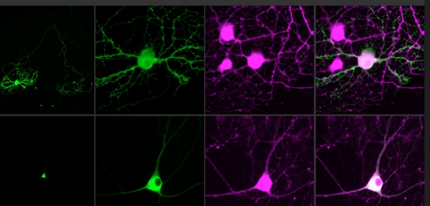 informative paper on neurons Neuron paper neurons are the specialized cells of the nervous system there are three types of neurons: sensory neurons, motor neurons, and interneurons.