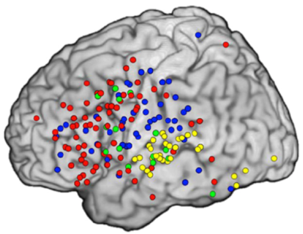 tracking the brain in real time
