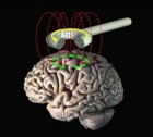 transcranial_stimulation