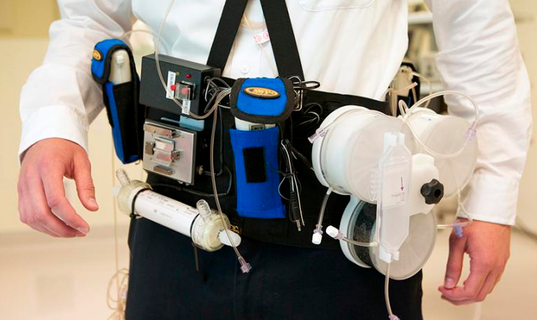Wearable artificial kidney prototype successfully tested kurzweil wearable artificial kidney prototype successfully tested june 14 2016 ccuart Image collections