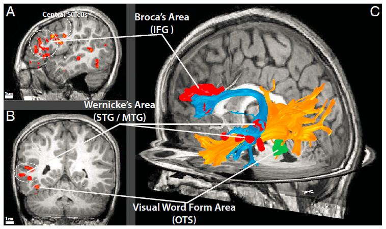 white_matter_connections_reading
