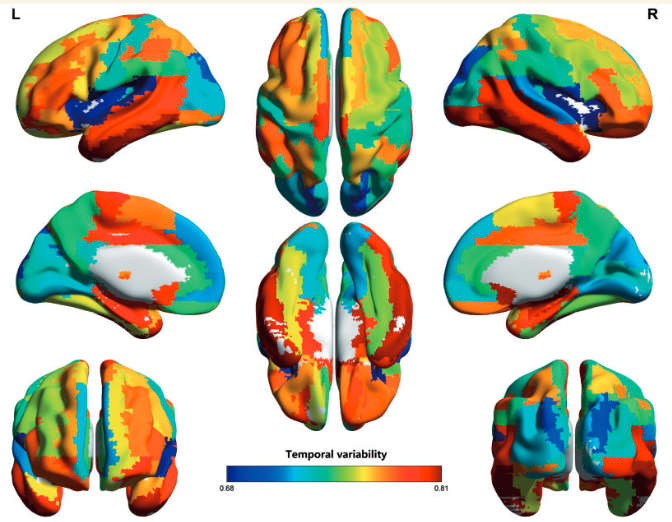 Whole-brain temporal (time) variability is high in areas associated with intelligence and low in sensory cortices (credit: Jie Zhang et al./Brain)