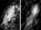 Images of a breast carcinoma: X-ray image (left) and photoacoustic image (right) (credit: University of Twente)